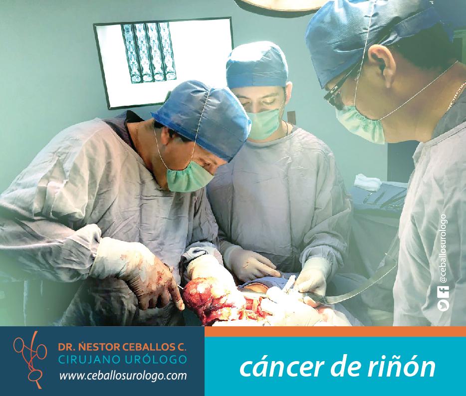 cancer-riñon